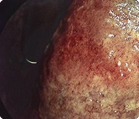 当院でおこなっている分光画像処理を用いると、病変がよりはっきりします。