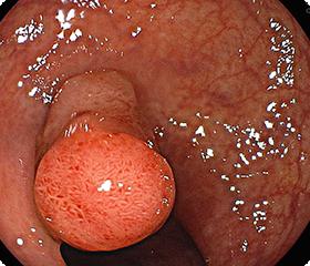 大腸にあるポリープの通常内視鏡画像です。